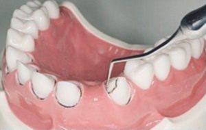 圧排 歯肉 被せ物の適合性を格段に上げる歯肉圧排処置とは?